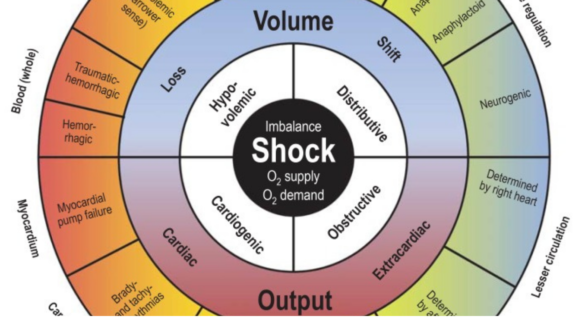 Different types of shock